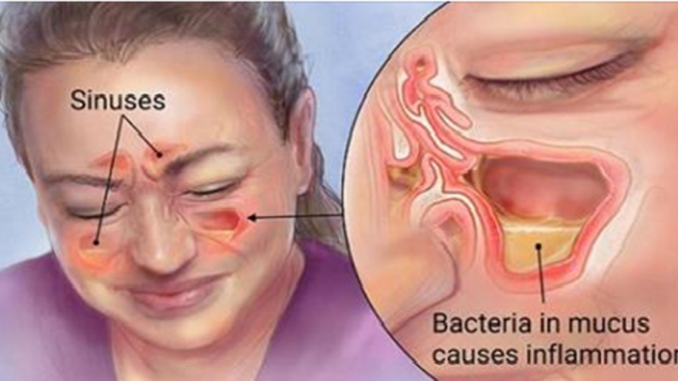 Clear Out Your Sinuses Using Only Your Fingers In A Matter