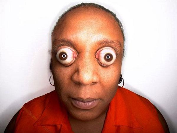 Worlds biggest eyes. Kim Goodman is a woman who is able to pop her ...