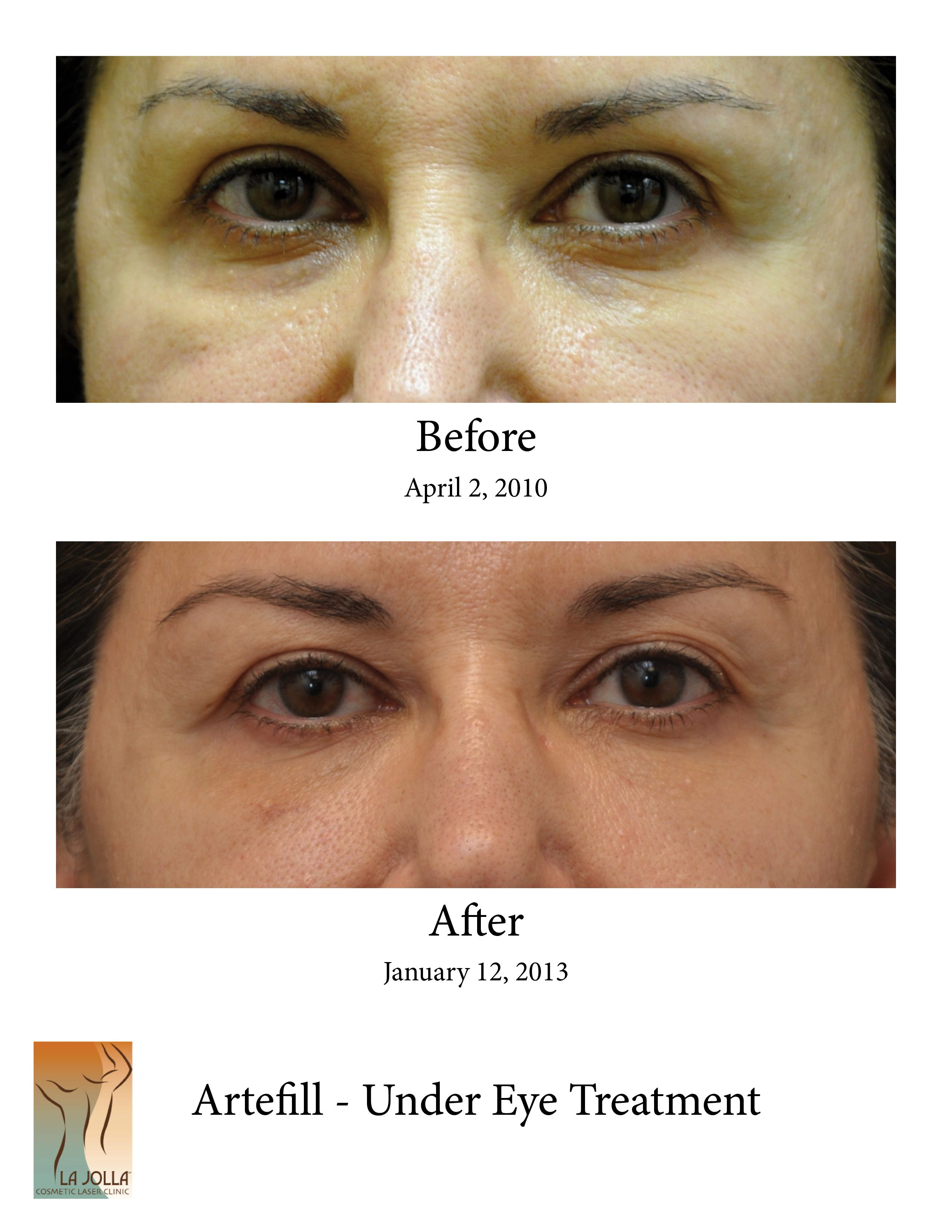 Patient Had Artefill Under Her Eyes To Take Care Of Dark Under Eye Circles To See More Photos Of Procedures Like Cosmetics Laser Dark Under Eye Laser Clinics