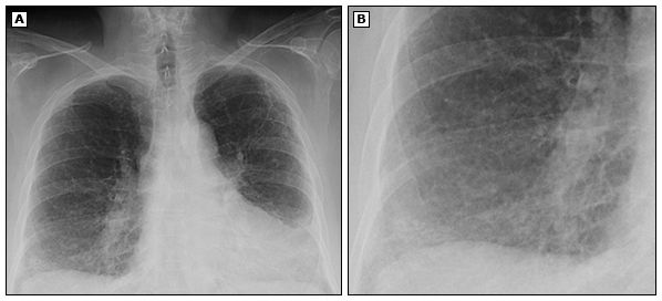 Chest X Ray Of Polymyositis Interstitial Lung Disease Polymyositis Lung Disease Disease