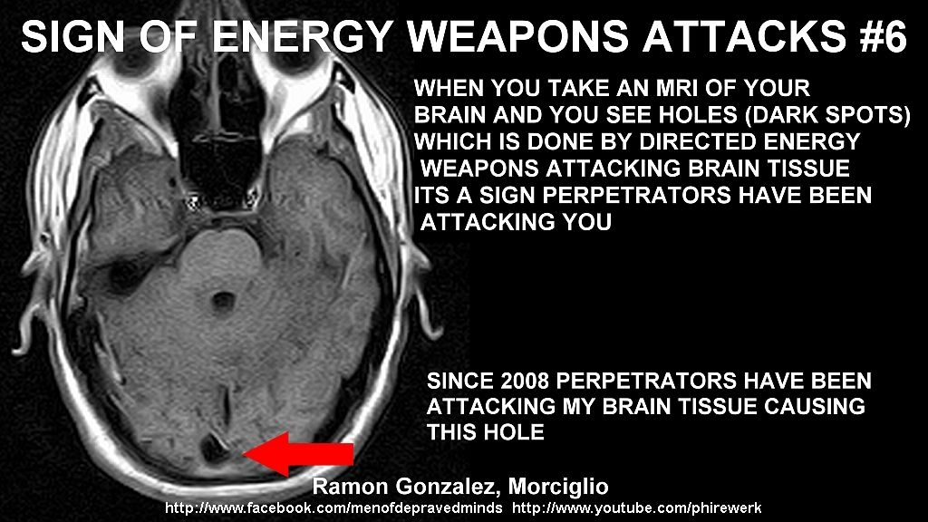 DIRECTED ENERGY WEAPONS CAUSES BRAIN DAMAGE | Targeted Individual