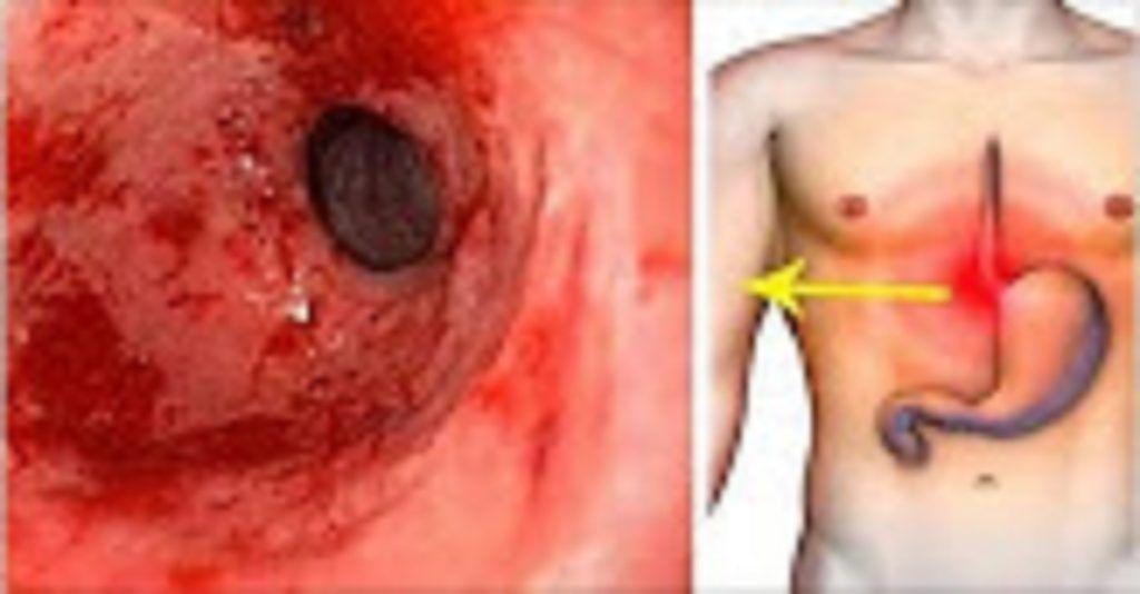 Basta de Gastritis - Elimina la gastritis y la acidez