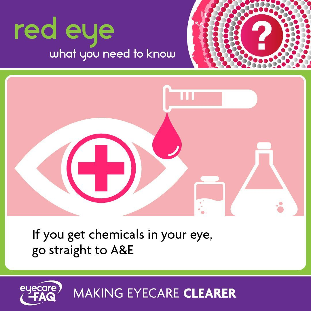 Red Eye Red eyes, Eye care, Eyes