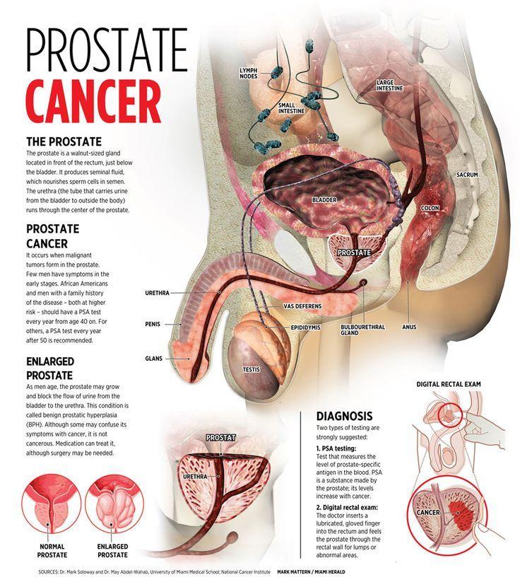 Prostate cancer information. | HEALTH | Pinterest | Prostate cancer ...