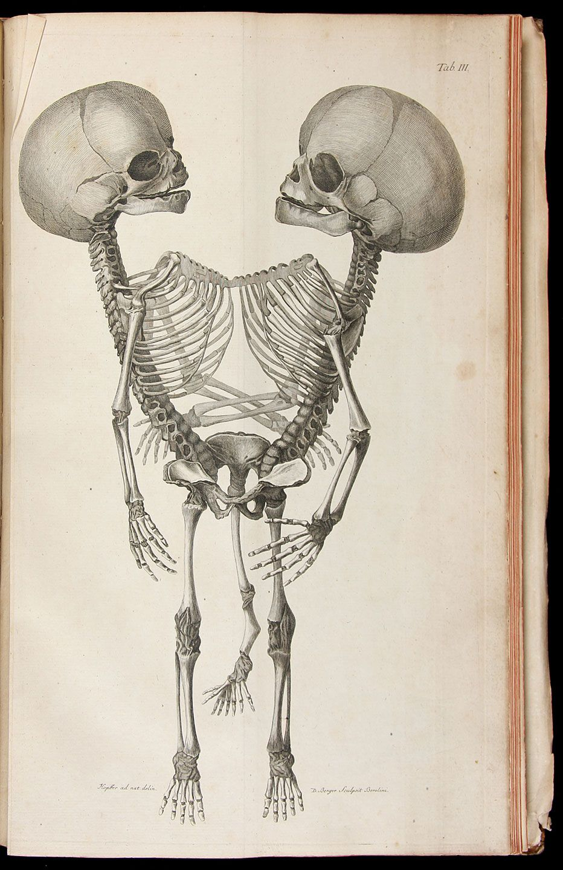 Own a Piece of Morbid Medical History | Fotos | Pinterest | Anatomía ...