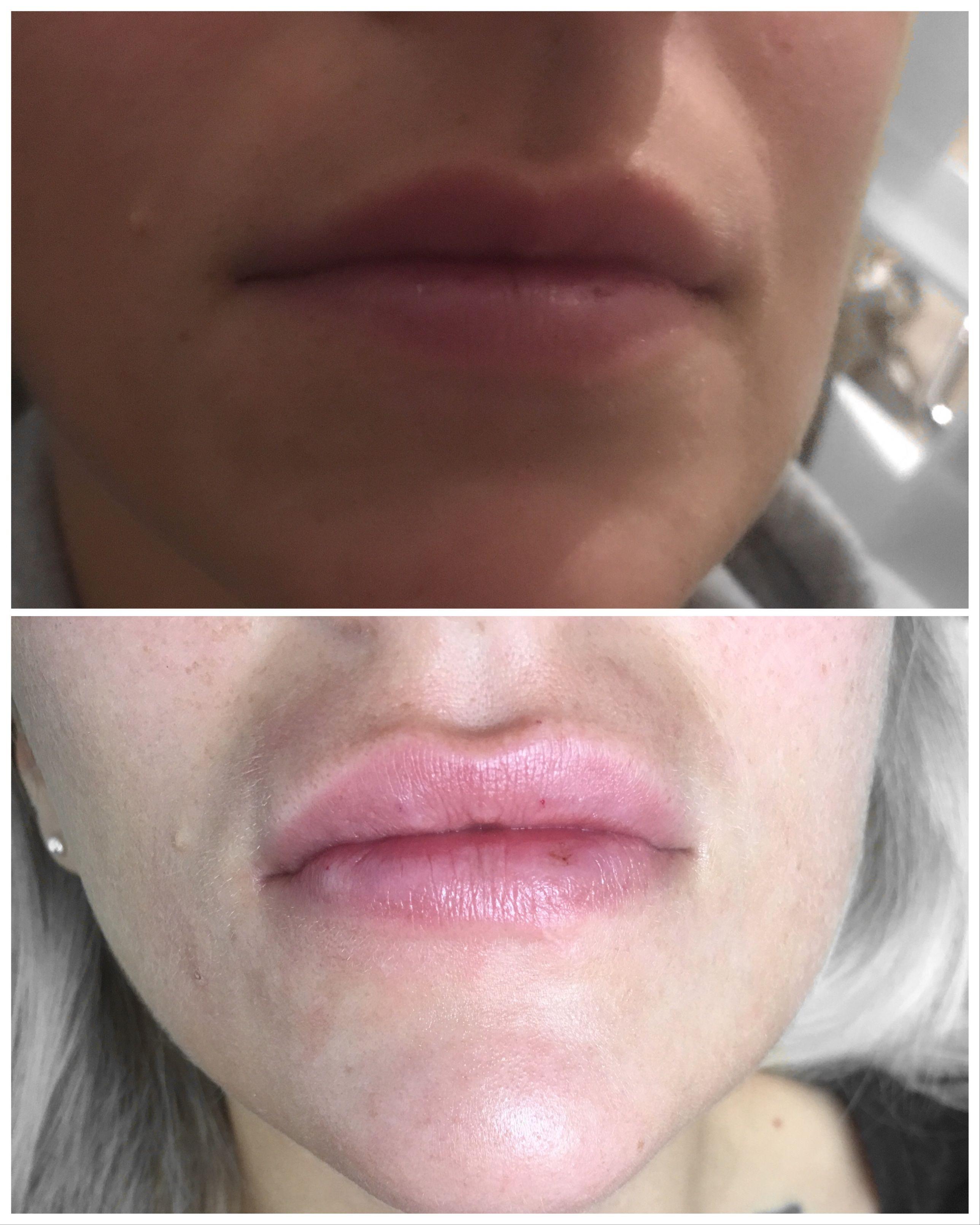 lips #beauty | Hyaluron Pen ❌