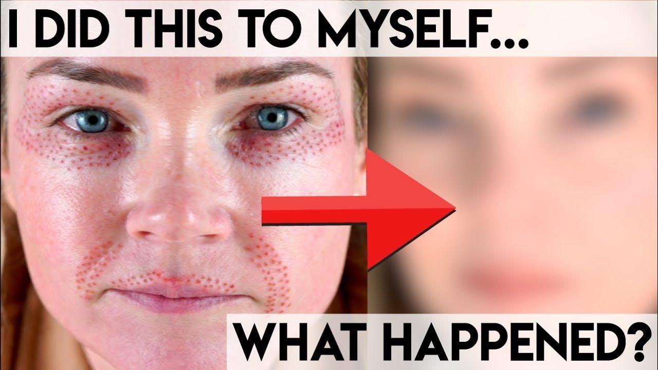 Fibroblast Plasma Pen Treatment I Did It Myself Should You Skin Care Devices Facial Care Treatment