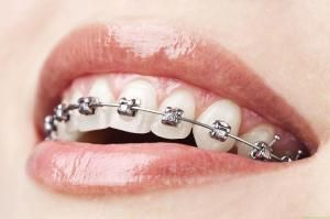 Whiten Teeth With Braces Healthy Folks Teeth Whitening Teeth