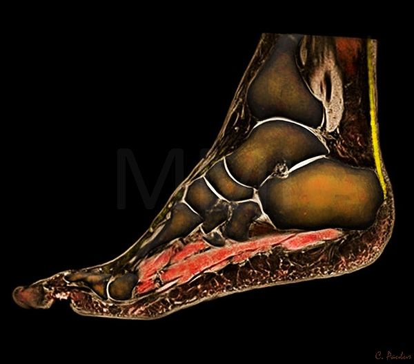 3 D Color MRI Foot Anatomy | Places to visit | Pinterest | Foot anatomy