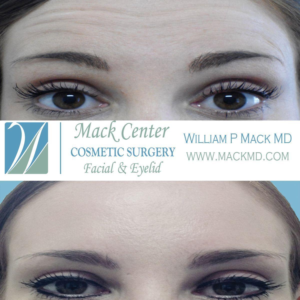 BOTOX Cosmetic treatments in Tampa Bay, Florida. www