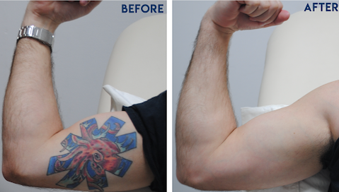 Best Tattoo Removal Cream Reviews Feb 2020 Tattoo Removal