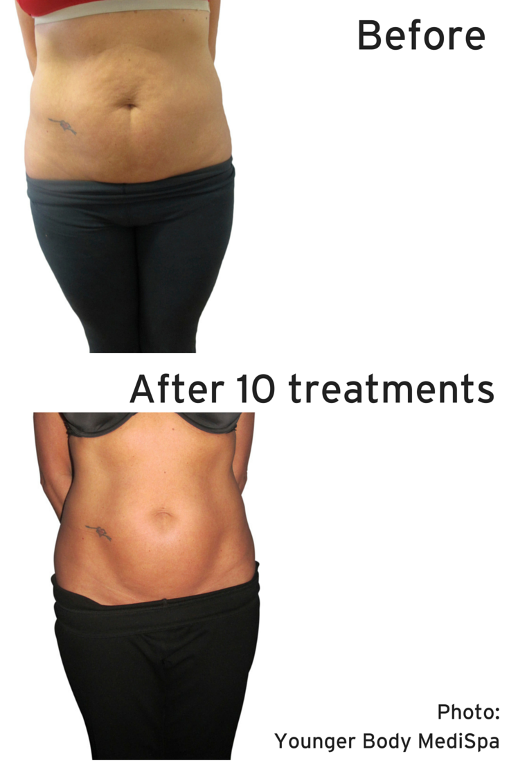 Ab Crunches And Sessions At The Gym Will Only Take You So Far Venusfreeze Can Help Push You Past The Finish Lin Anti Aging Treatments Medispa Body Contouring
