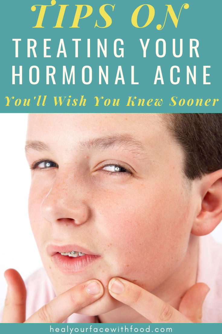 Estrogen Dominance And Acne Causes Of Hormonal Acne Hormonal Acne Acne Treatment Back Acne Treatment