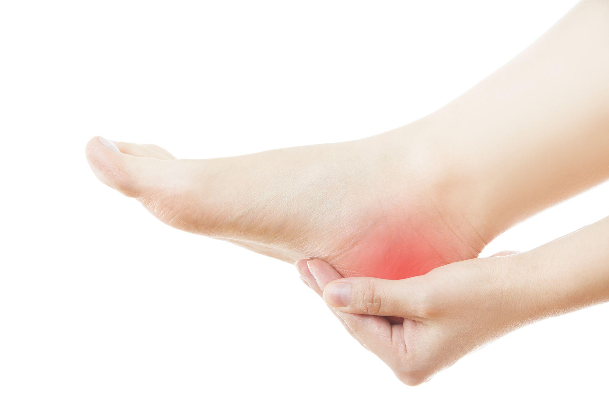 Le mal de talon le plus fréquent est la fascéite plantaire, aussi nommée syndrome de l'épine de Lenoir.
