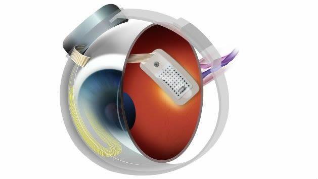 Un 'ojo biónico' que puede ayudar a terminar con los problemas visuales
