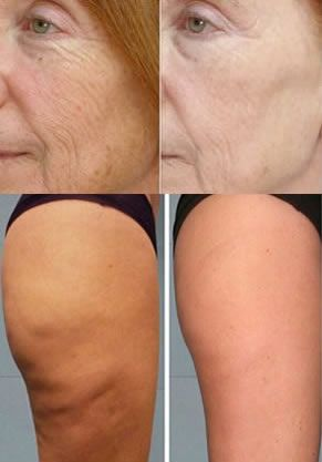 How To Fix Crepe Skin See Why Doctors Are Furious Crepe Skin Beauty Skin Skin