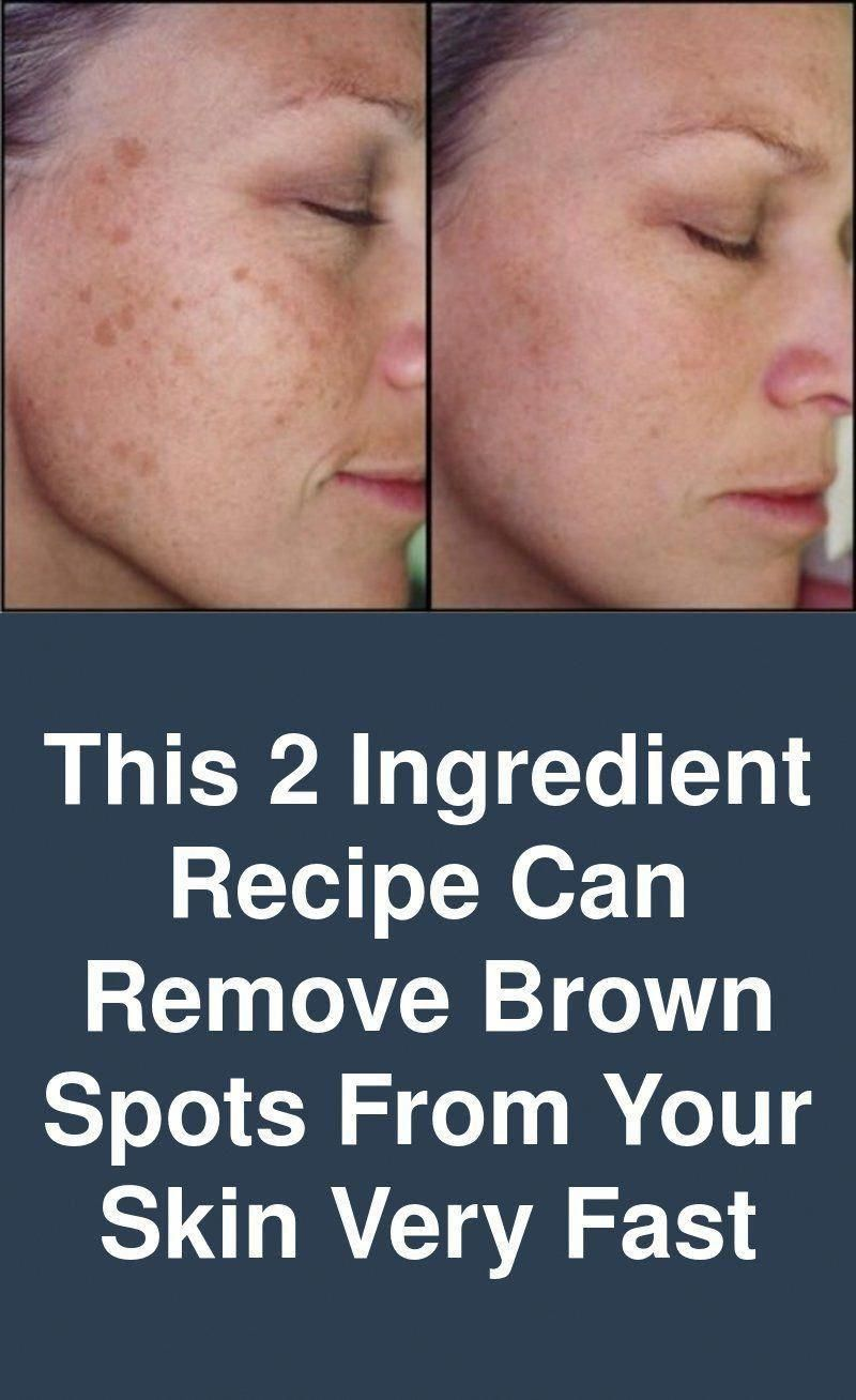 Find Out Who Is Worried About Remove Brown Spots And Why You Should Pay Attention Healthy Medicine Tips In 2020 Brown Spots On Face Spots On Face Brown Age Spots