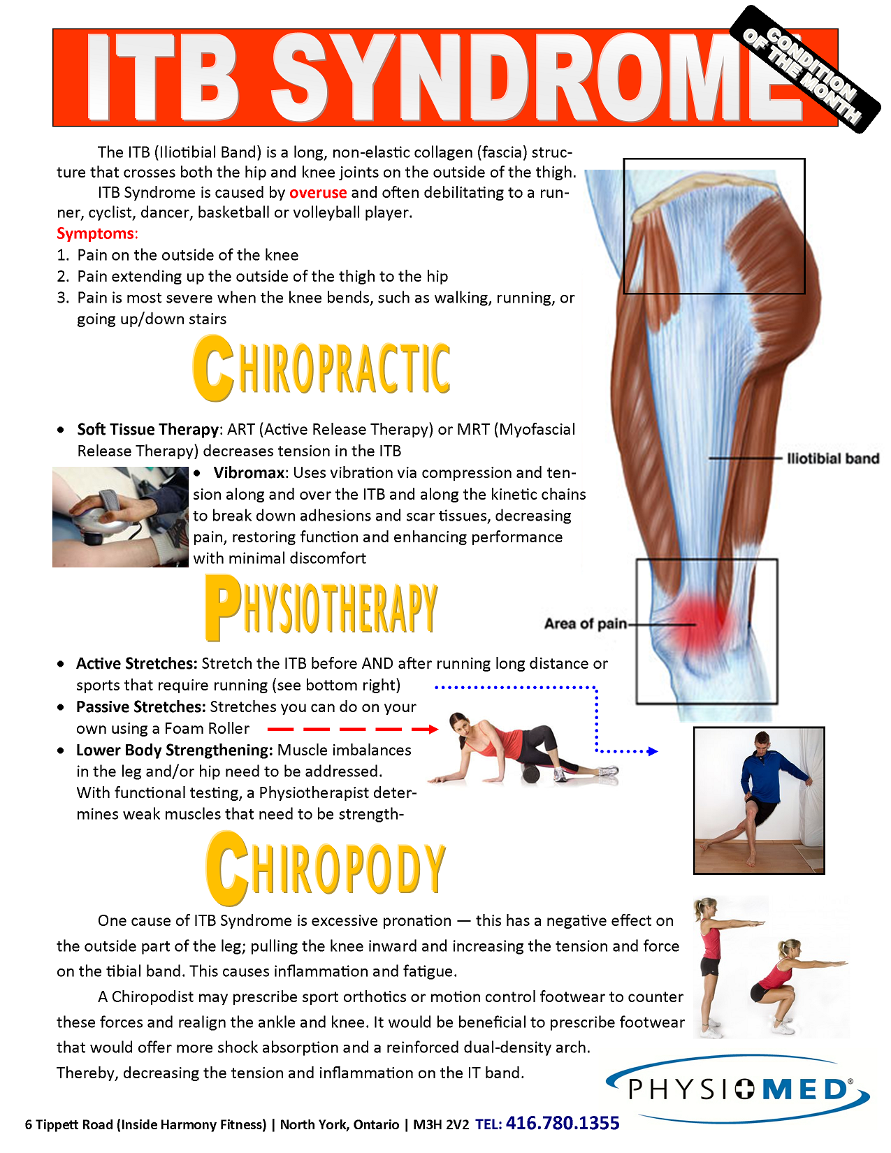 13+ Stretches for it band pain ideas