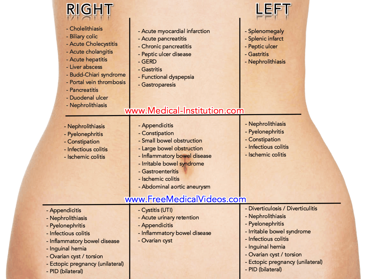 You Saved To Medical Mnemonics Abdominal Pain Differential