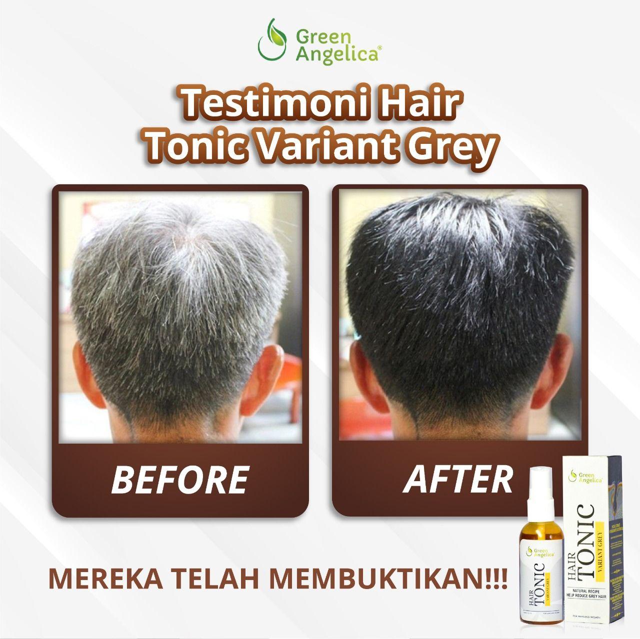 Hair Tonic Uban Green Angelica Menghitamkan Rambut Uban Dari Akar Rambut Hasil Permanen Teruji Bpom Rambut Hitam Rambut Rambut Bercabang