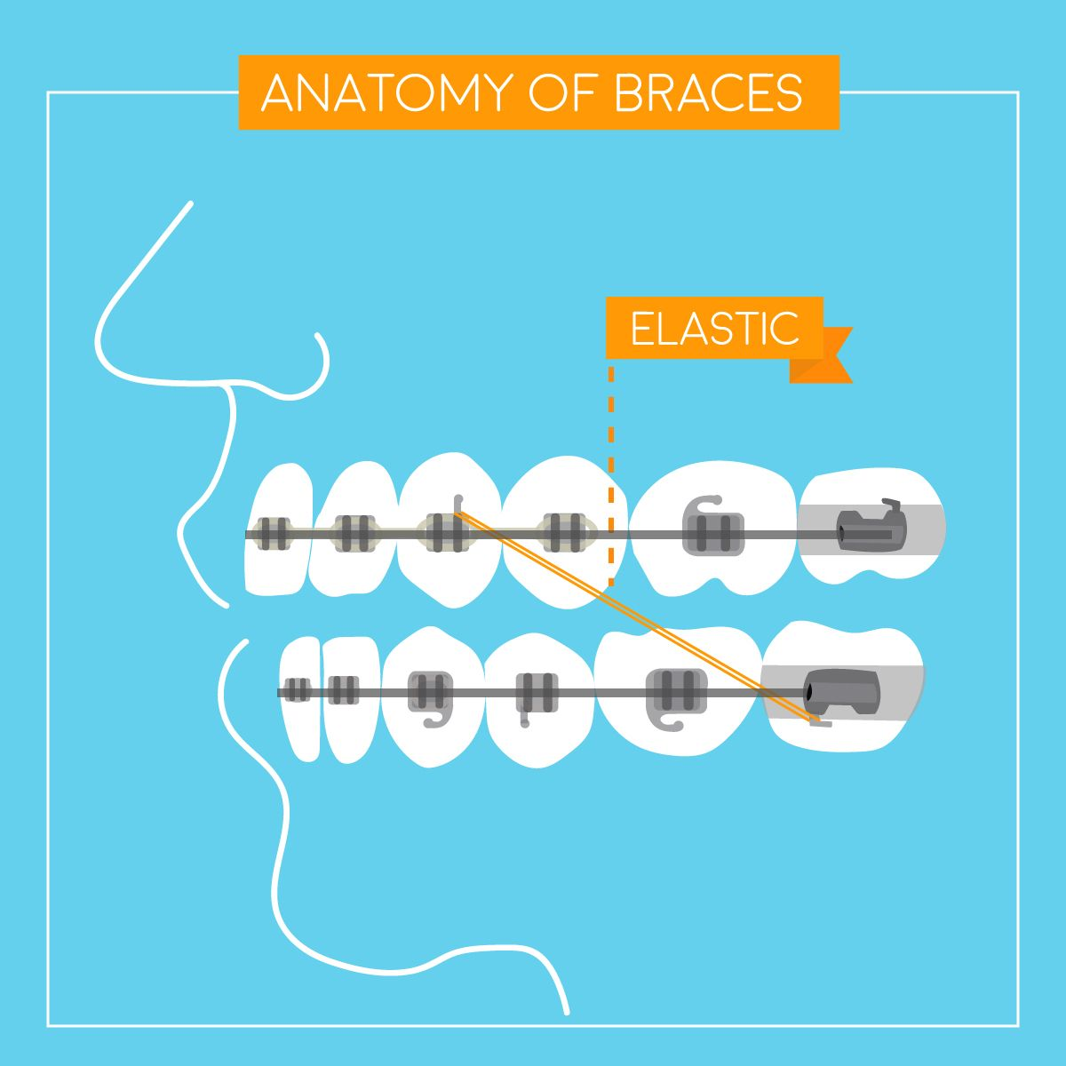 Rubber Bands Braces Diagram Coleman Furnace Wiring Piece By Elastics Play A Key Part In
