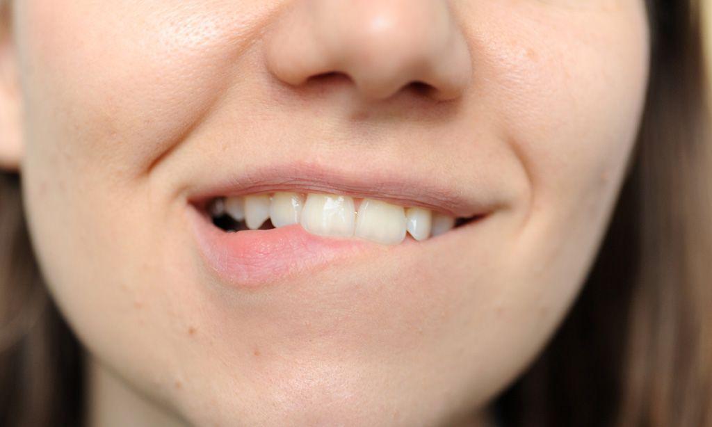 Können verletzte Zähne sich selbst reparieren? « DiePresse.com