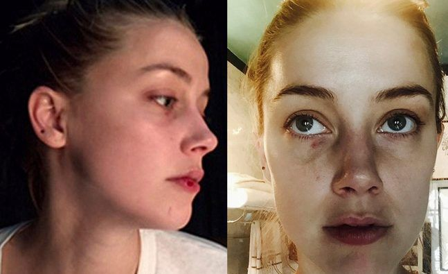 Amber Heard Releases New Pics Of Johnny Depp S Alleged Assault All 4 Women Amber Heard Johnny Depp Pictures Johnny Depp