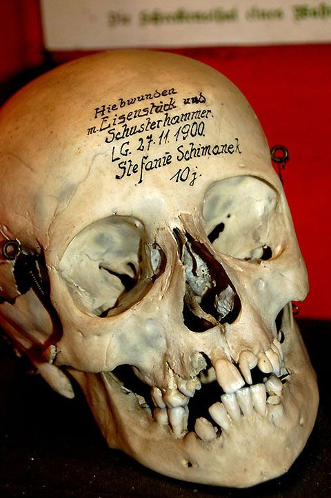 real-human-skulls-for-sale-real-human-skulls-for-sale-pictures-to, Skeleton
