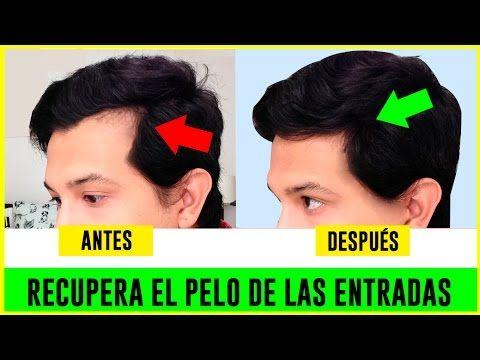 como hacer crecer el cabello de forma natural para hombres