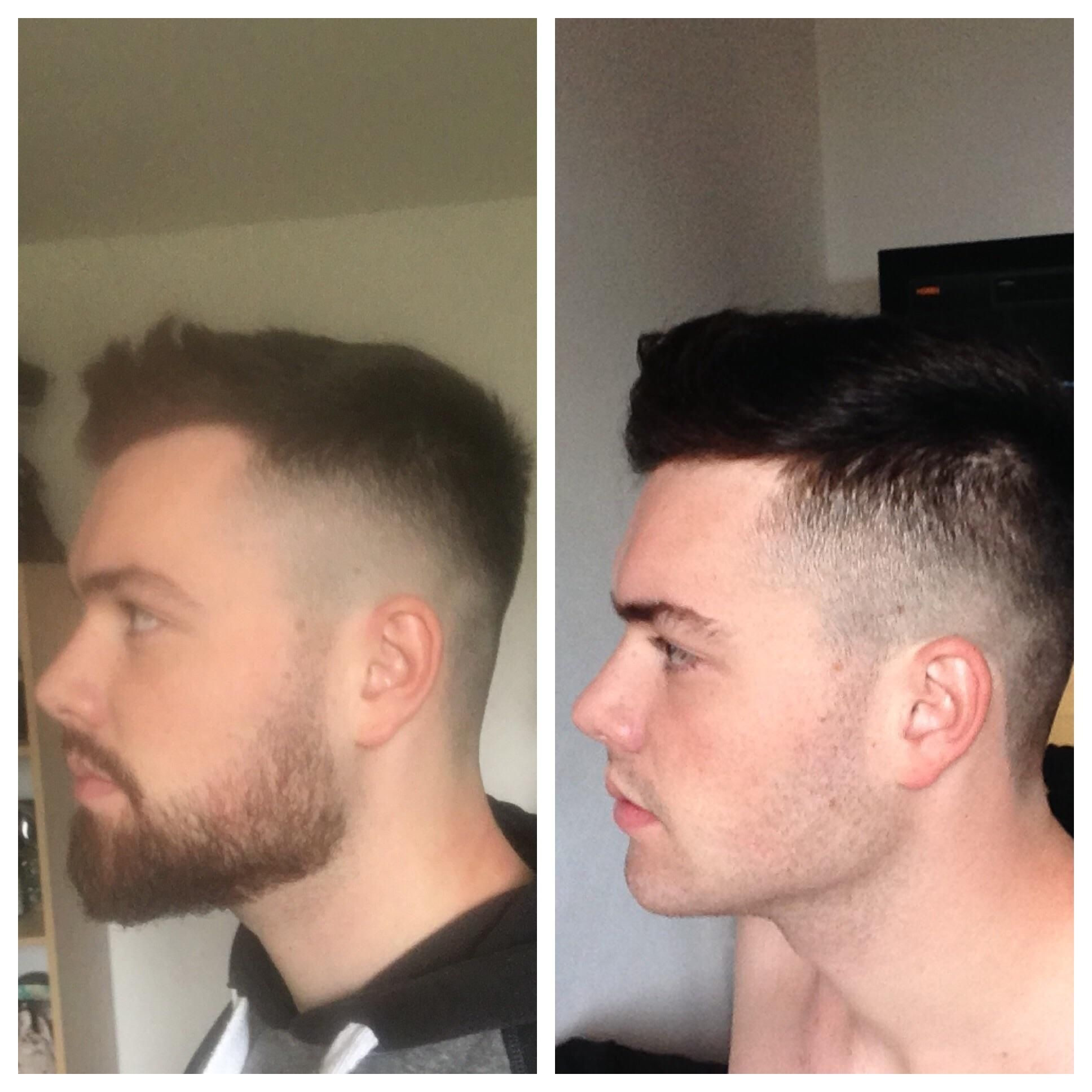 2 month progress Patchy beard