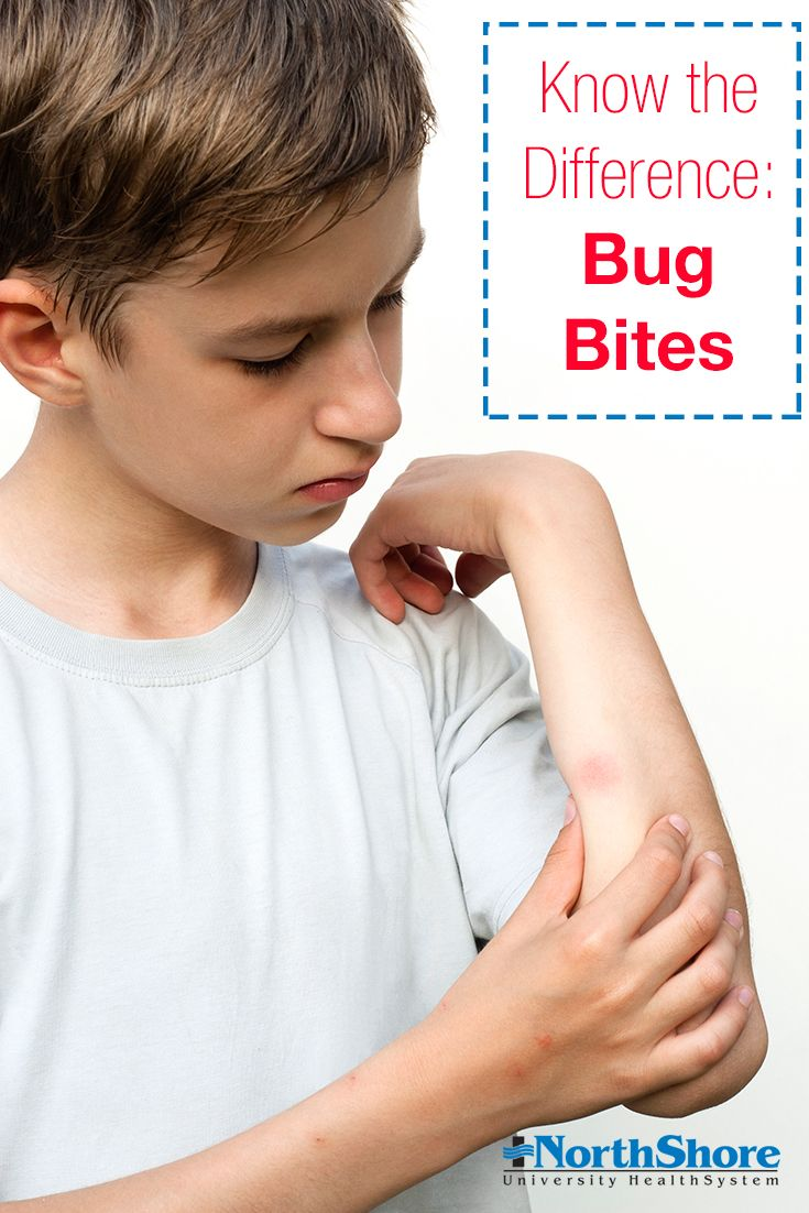 What bit me? If you're not sure, take a look at these tips
