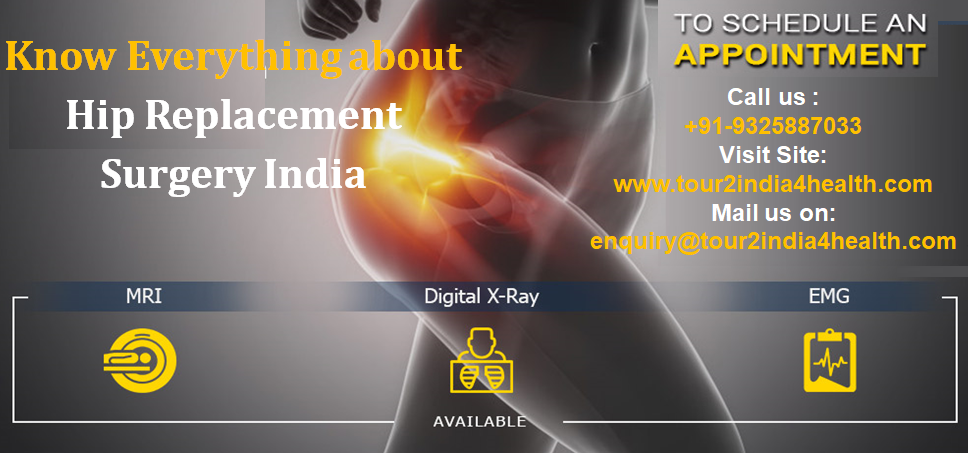 Know everything about Hip Replacement Surgery India