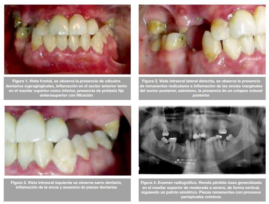 periodontitis-cronica