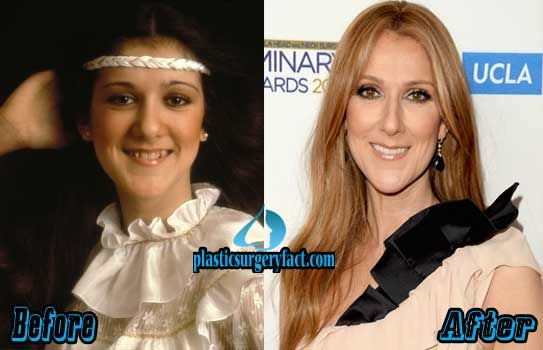 Celine Dion Plastic Surgery Before And After Pictures Plastic Surgery Celebrity Plastic Surgery Celine Dion