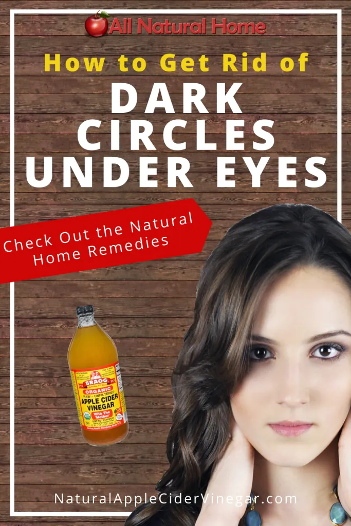 How to Get Rid of Dark Circles Under Eyes Naturally in ...