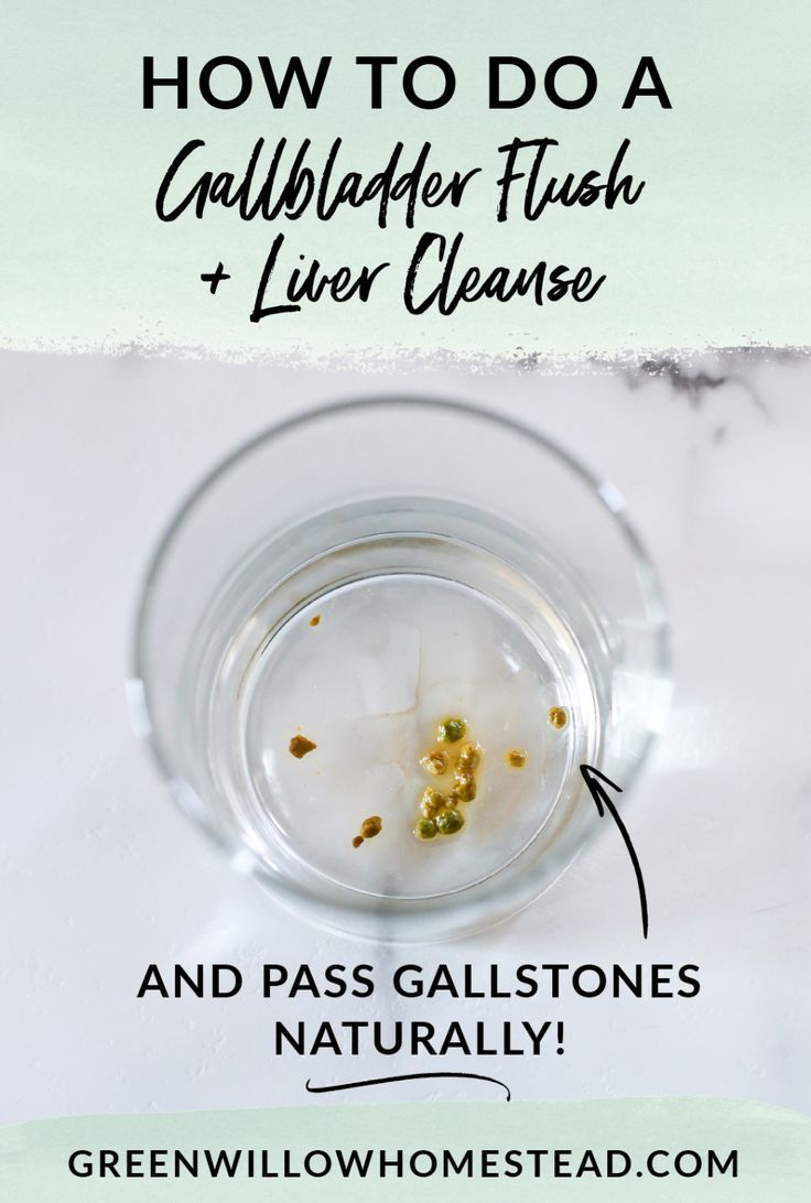 How To Do A Gallbladder Flush And Liver Cleanse To Pass Gallstones Naturally