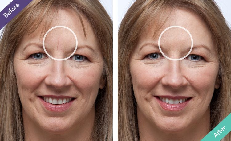 The Best Wrinkle Filler No Needles, Instant Results