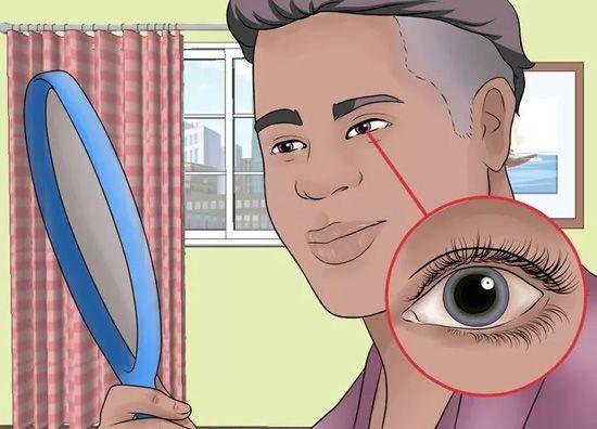 Detect an Aneurysm