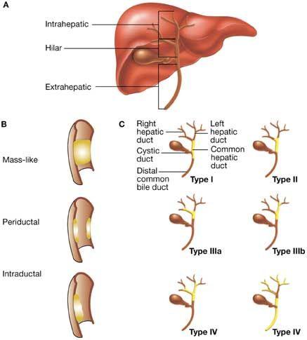 Nature Clinical Practice Gastroenterology Hepatology Figure 1 Cholangiocarcinoma Bileductc Gastroenterology Bile Duct Cancer Awareness Bile Duct Cancer
