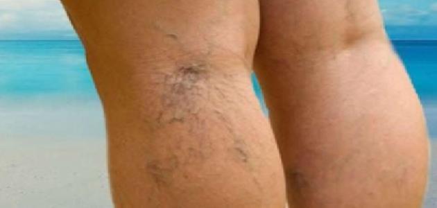 كريم لعلاج دوالي الساقين للبيع على الأنترنيت في المغرب تخفيضات على مواقع البيع على الأنترنيت في المغرب Blog Posts Places To Visit