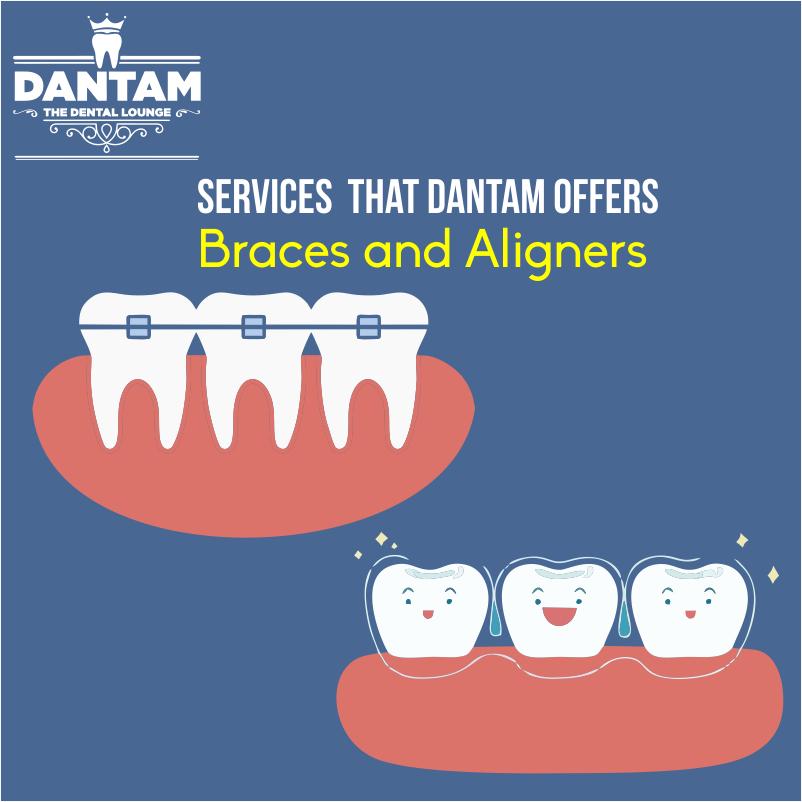 Our cosmetic #Dentist have orthodontic options available to ...