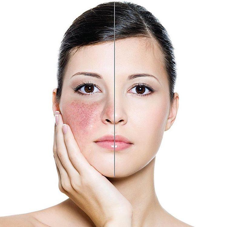 11 Things People Living With Rosacea Want You To Know Tratamento De Rosacea Estetica Facial Rosto