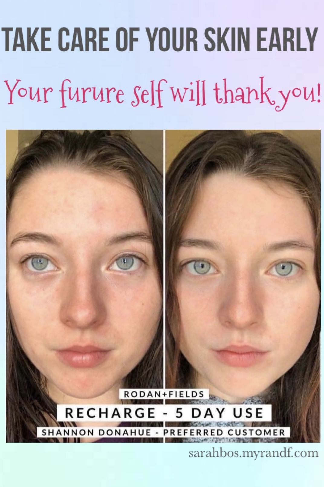 Skincare For Your 20 S Easy Effective Simple Skincare Routine Simple Skincare Dehydrated Skin