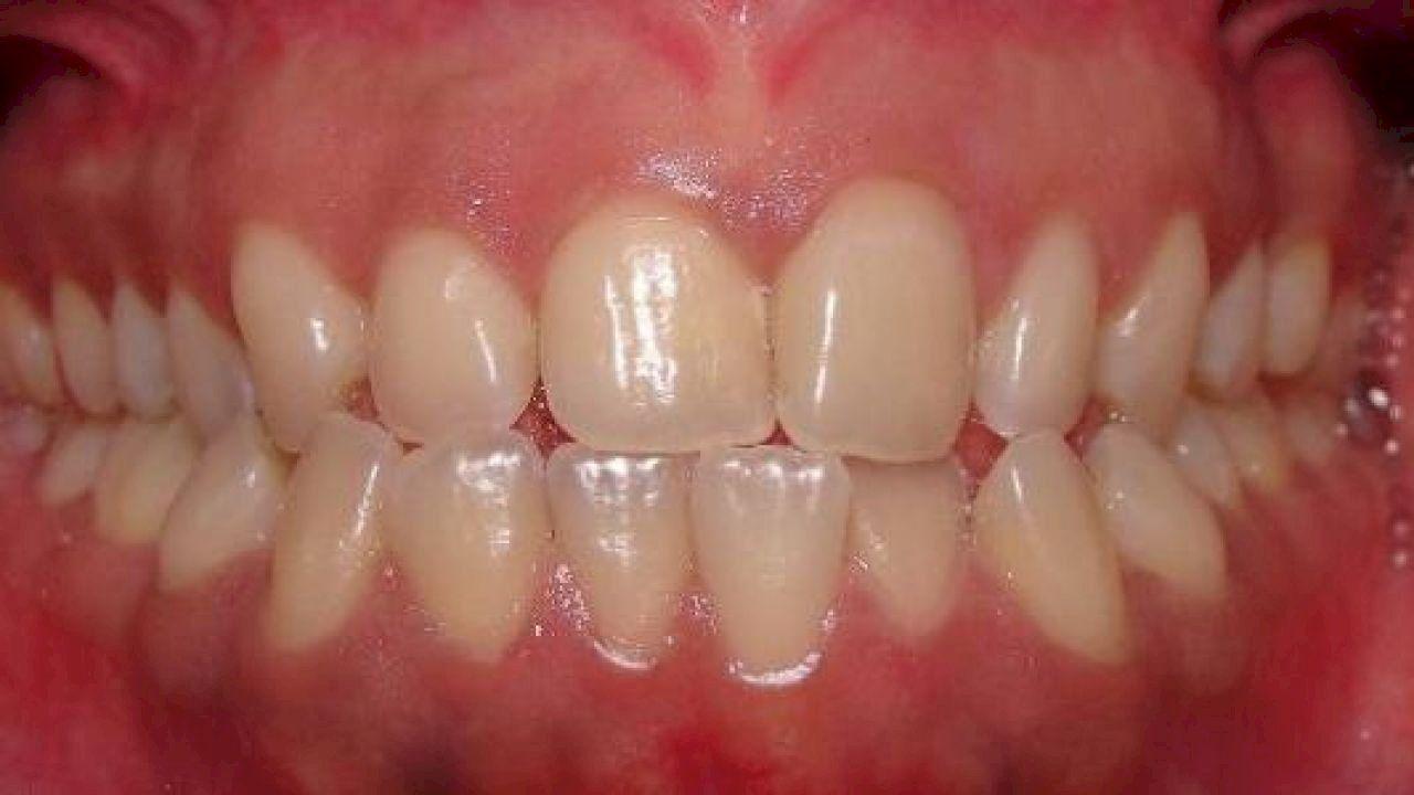كيفية علاج اللثة الملتهبة Gum Treats