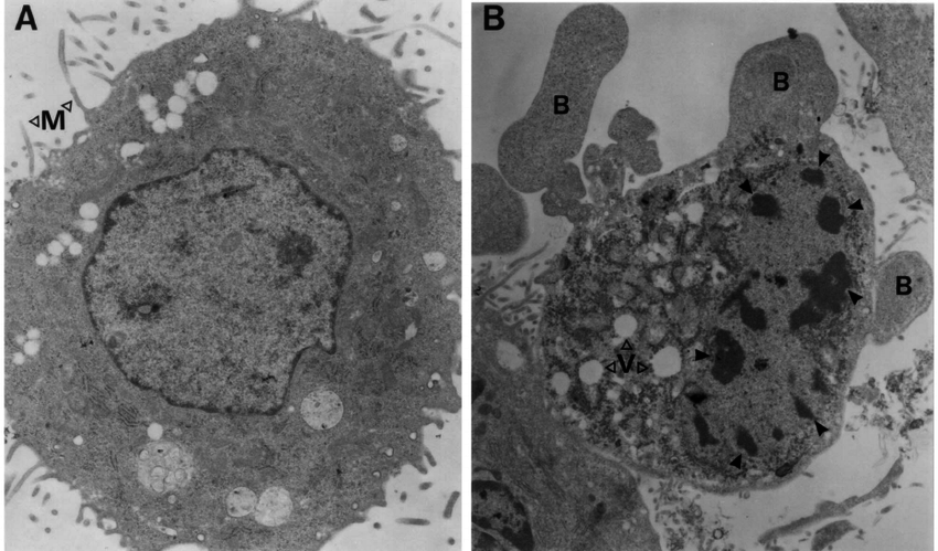 FIG. 1. EM images. (A) Uninfected AT3Neo cell (M, microvilli). (B) SFV A7-infected AT3Neo cell at 36 h postinfection, with condensed and marginalized chromatin (solid arrowheads), surface protrusions (blebs; B), and vacuolated cytoplasm (V).