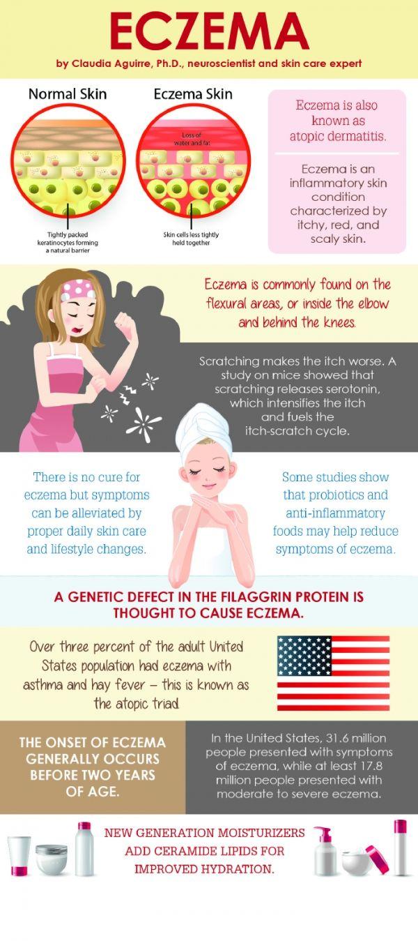 Eczema Facts Be Informed Eczema Shampoo Severe Eczema