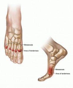 Foot injury bottom ball sports