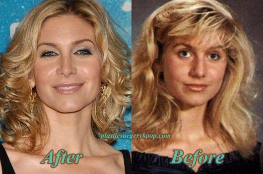 Elizabeth Mitchell Nose Job A Drastic Change Celebrity Plastic