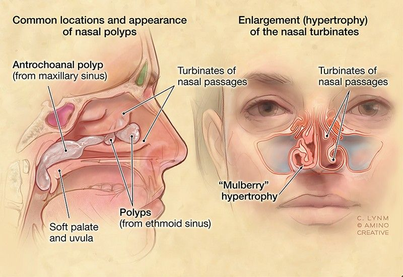 Image Result For Anatomy Of The Nose And Sinuses Anatomy Of Nasal