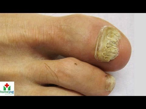 Natural Treatment For Athlete S Foot People S Pharmacy